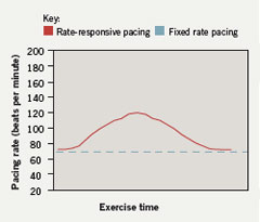 Figure 2. Rate-responsive pacing results in an exercise-induced rise in the pacing rate that resembles a physiological response. The pacing rate declines following exercise cessation until it reaches the programmed basic rate
