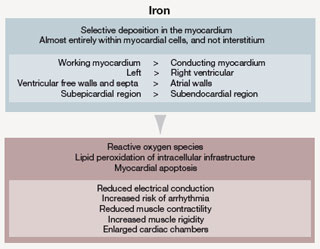 Figure 2. Iron deposits in the myocardium heterogeneously