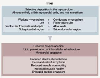 Figure 2. Iron deposits in the myocardium heterogeneously