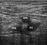 Figure 3. Cross-sectional images of the right femoral vessels approximately 3 cm below the inguinal ligament, orientated to be as seen from patient's feet. The superficial femoral artery (SFA) partially overlaps the femoral vein (FV). The profunda femoris artery (PFA) is deeper