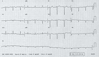 Figure 1. 12-lead electrocardiogram (ECG) in dextrocardia