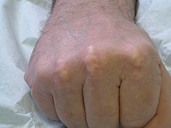 Figure 1. Xanthomata of the knuckles