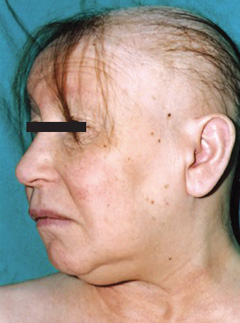 Figure 1. Facial appearance of myxoedema with alopecia, coarse dry skin, 'lemon and peach' skin complexion, and peri-orbital puffiness