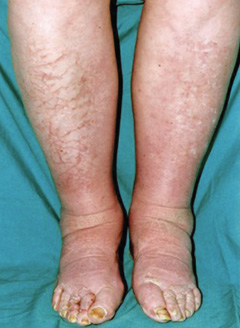 Figure 2. Non-pitting oedema of lower limbs consistent with myxoedema