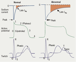 Figure 1: The cardiac sodium channel current