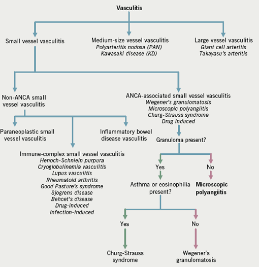 Figure 2. Major classification of vasculitis according to the Chapel Hill Consensus Criteria. Modified from Mansi et al.