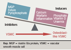 Figure 3. Pathophysiology of vascular calcification. Vascular calcification is prevented by naturally occurring inhibitors of mineralisation. However, an imbalance between inducers and inhibitors of calcification can result in vascular smooth muscle cells (VSMCs) developing an osteoblast-like phenotype. These osteoblastlike VSMCs lay down mineralised matrix resulting in vascular calcification