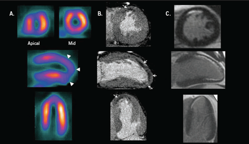 Figure 1. A. Myocardial perfusion scintigraphy (SPECT) scan demonstrating a partial thickness infarction involving the anterior wall, apex and apical inferior wall; B. computed tomography angiogram (CTA) demonstrating sub-endothelial hypoattenuation at rest in the anterior wall, apex and apical inferior walls; C. cardiac magnetic resonance (CMR) scan showing late Gadolinium enhancement in the same territories
