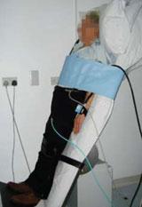 Figure 2. Patient undergoing a tilt-test at 60°