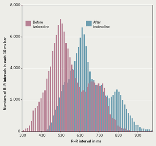 Figure 1. 24-hour R–R interval histogram to show heart rate slowing with ivabradine