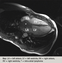 Figure 3. Cardiac magnetic resonance image (MRI) consistent with a lymphoma tumour