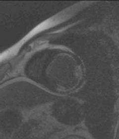Figure 1. A short-axis slice of the mid left ventricle illustrating contrast enhancement in the anterior segment (25% transmurality – viable), anterolateral segment (50–75% transmurality – non-viable), inferolateral segment (50% transmurality – potentially viable)