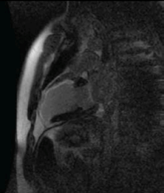 Figure 2. A long-axis slice demonstrating contrast enhancement in the anterior wall in the basal segment (50% transmurality – potentially viable), mid and apical segments and apical cap (>75% transmurality – nonviable