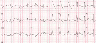 Figure 1. Patient's electrocardiogram (ECG) on admission – characteristic of severe hyperkalaemia