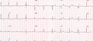Figure 2. Patient's ECG following treatment – complexes returned towards normal morphology