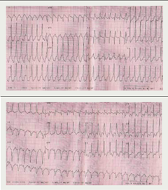 Figure 1. 12-lead electrocardiogram (ECG) demonstrates ventricular tachycardia of varying morphology