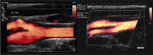 Figure 1. Ultrasound arterial scans showing a normal carotid bifurcation with blood flow shown in red (left) and a bifurcation with a plaque outlined by a red dotted line (right)