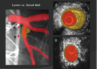 Figure 1. Positive remodelling: arterial expansion to protect luminal size