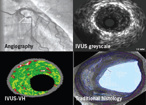 Figure 2. Intravascular ultrasound virtual histology (IVUS-VH): producation of a colour-coded map of the atherosclerotic plaque