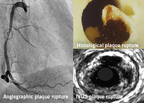 Figure 3. Plaque rupture on angiography and IVUS