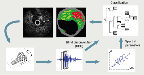Figure 4.The reflected ultrasound signal being converted to its corresponding tissue type