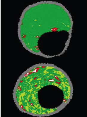 Figure 5. Fibrous plaque appearing as dark green (top) and fibrofatty plaque appearing as light green (bottom)