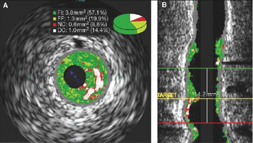 Figure 7. IVUS-VH in longitudinal view showing a specific frame and length/distibution of disease