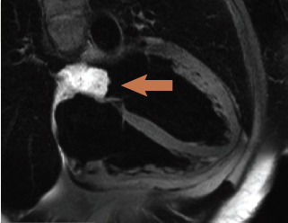 Figure 1. T2 weighted spin echo sequence (CMR) showing high signal intensity of left atrial mass