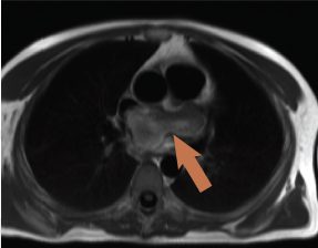 Figure 3. 'Black blood' image showing left atrial mass with extracardiac extension