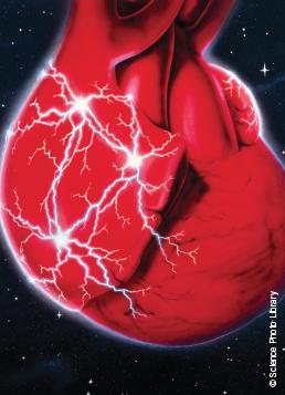 Ablation Of Atrioventricular Reentrant Tachycardia Avrt