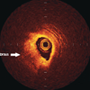 From patient to plaque. Contemporary coronary imaging – part 2: optical coherence tomography