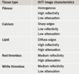 Table 1. Image characteristics of optical coherence tomography (OCT)
