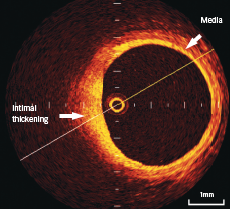 Figure 1. Optical coherence tomography (OCT) shows the three-layer appearance of normal vessel wall. The muscular media appears as a low signal layer between internal and external lamina (2 o'clock). Intimal thickening is seen at 6–9 o'clock