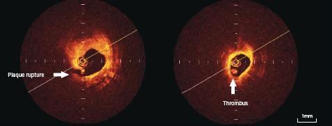 Figure 4. OCT appearance of plaque rupture (6 o'clock position) on left-sided panel, with intraluminal thrombus seen in right-sided panel