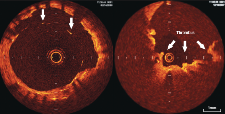 Figure 5. OCT appearance of stent struts inapposed to the vessel wall (arrows) seen from 10–3 o'clock position on left-sided panel, with overlying thrombus on some of the stent struts as seen on right-sided panel