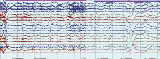Figure 1. Standard electroencephalograph (EEG) recording from a patient with focal epilepsy and recurrent seizures characterised by sudden onset of déjà vu, a rising epigastric sensation followed by loss of awareness and then collapse with marked facial pallor. The EEG shows right-sided rhythmic epileptic activity (most easily seen in the RsSph electrode trace) followed several seconds later by a 10–12 second period of cardiac asystole (electrocardiogram [ECG] trace – bottom red line). Anti-epileptic medication was commenced and a permanent pacemaker was fitted and she has remained well with occasional déjà vu but no episodes of collapse or loss of consciousness