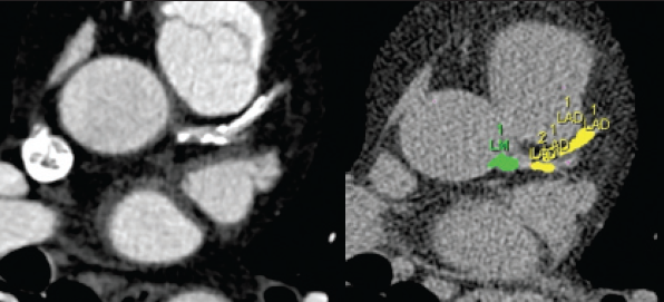 Figure 1. (Left) Contrast enhanced computed tomography (CT) angiogram demonstrating both calcified and non-calcified plaque in the left main and left anterior descending (LAD) arteries (slice width 0.75 mm). (Right) Non-contrast calcium scoring CT. The coloured areas represent calcified plaque with Houndfield Unit (HU) > 130, segmented into left main (green) and LAD (yellow) (slice width 3 mm)