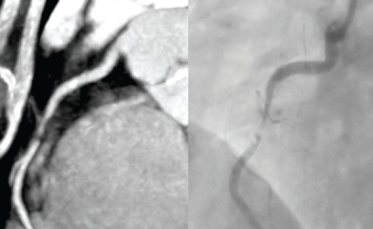 Figure 2. Right coronary artery viewed using CT angiography demonstrating a critical stenosis (left) and same artery shown during invasive angiography (right) for comparison