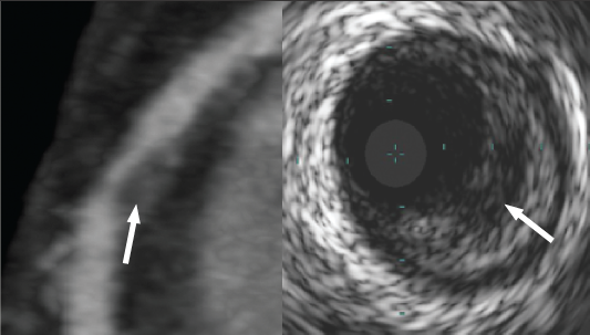 Figure 3. Lipid pool on cardiac CT and intravascular ultrasound (IVUS). CT (left) showing plaque with low attenuation area (white arrow) and corresponding IVUS frame (right) demonstrating echolucent area within plaque (white arrow)