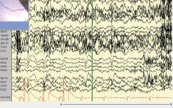 Figure 1. Patient 1: electroencephalograph (EEG)–electrocardiogram (ECG) recording showing a period of asystole A–B