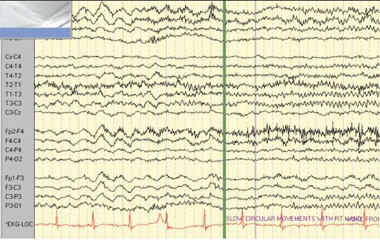 Figure 2. Patient 2: EEG–ECG recording prior to seizure onset showing a normal heart rate