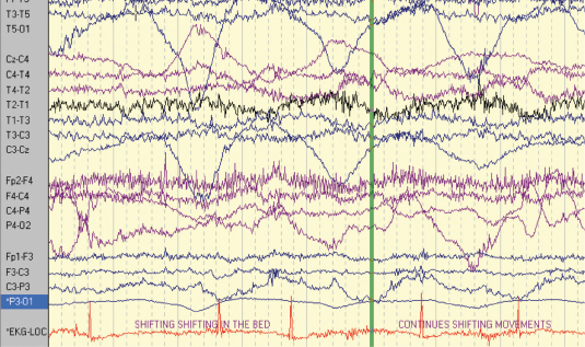 Figure 3. Patient 2: EEG–ECG recording after seizure onset showing ictal bradycardia