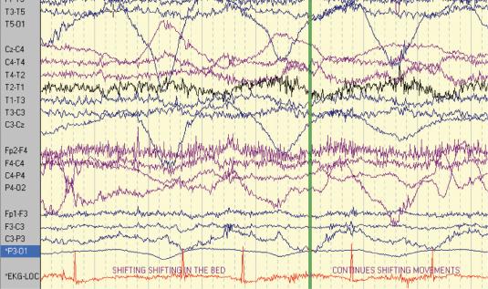 Figure 3. Patient 2: EEG–ECG recording after seizure onset showing ictal bradycardia