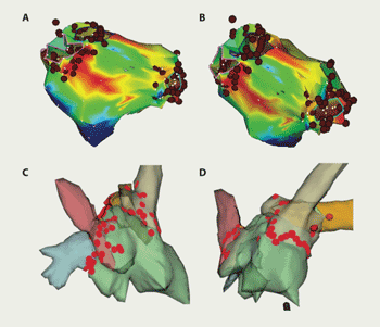 Figure 1. Example of CARTO (A and B) and NavX (C and D) computer maps of the left atrium showing lesion sets to isolate pulmonary veins