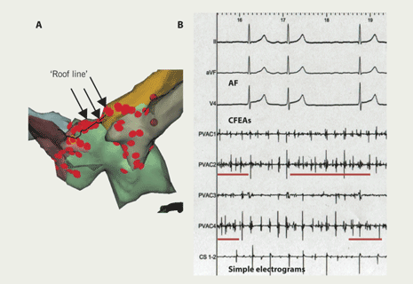 Figure 2. A NavX computer map of the left atrium (A), showing a 'roof-line' ablation linking right and left upper pulmonary vein ostia; and examples of focal complex fractionated electrogram ablation (CFEAs; underlined) and simple atrial electrograms during atrial fibrillation (AF) (B)