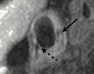 Figure 1. 3T magnetic resonance imaging (MRI) of atherosclerotic plaque in a right common carotid artery. The vessel wall is lined with complicated, lipid-rich plaque, which has a necrotic core (solid arrow). A thin fibrous cap can be seen in the bottom-left of the image (dashed arrow)