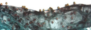 Figure 5. Microparticles of iron oxide (MPIO) bound to the aortic root of apolipoprotein E knockout mice. These particles have a paramagnetic effect, which leads to signal dropout when imaged using MRI
