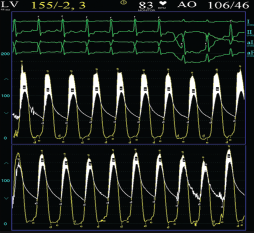 Figure 2. Aortic and left ventricular traces pre- and post-valvuloplasty. The mean aortic pressure gradient has reduced significantly from 50 mmHg to 25 mmHg