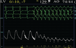 Figure 3. Rapid ventricular pacing stabilises the balloon when it is inflated. A pacing catheter is placed in the right ventricle. Rapid ventricular pacing is initiated at approximately 180–220 bpm and temporarily leads to a drop in systemic pressure. The balloon is inflated only after the pacing rate is reached and the blood pressure drops, and pacing is also continued until the balloon is deflated