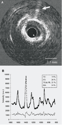 Figure 1. Co-registration of intravascular ultrasound (IVUS) images (A) with Raman spectroscopy data (B)